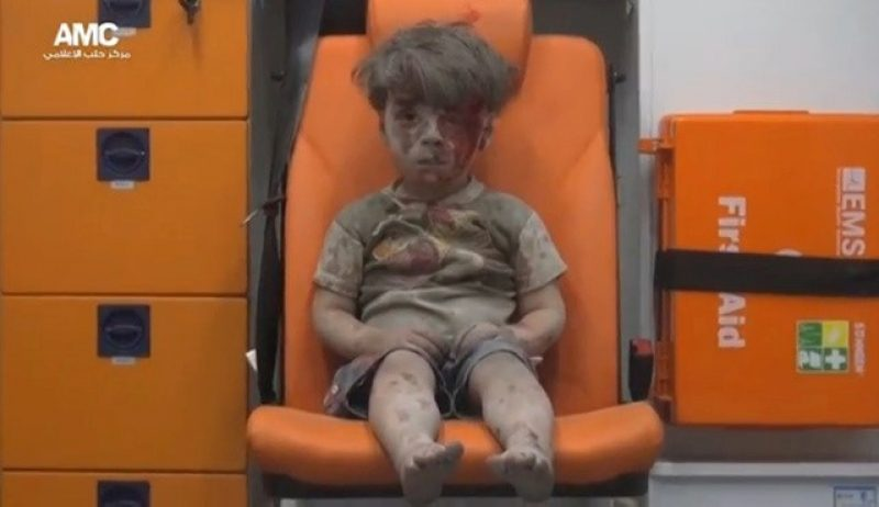 Boy with injuries and dust from rubble